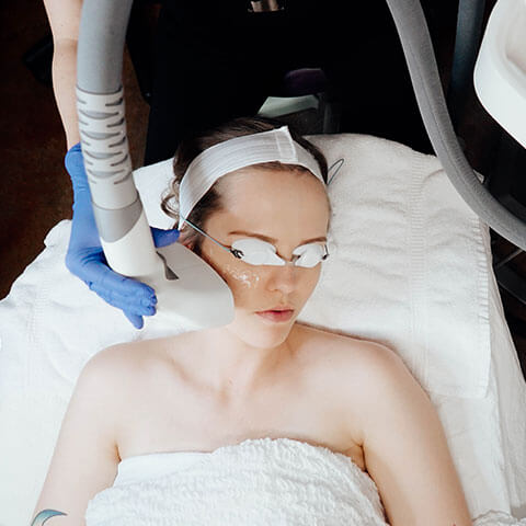 IPL Photo-Facial