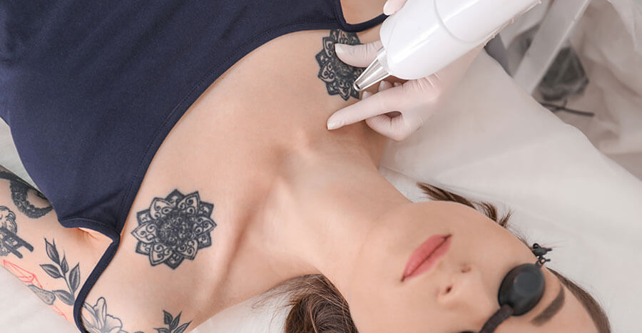 Laser Tattoo Removal, Laser Tattoo Removal