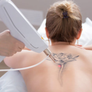 Tattoo Removal Training, Laser Tattoo Removal Training Course